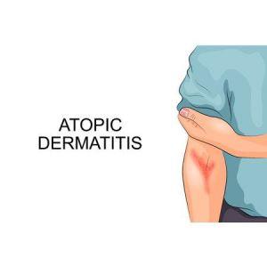 DO11 I Atopische Dermatitis